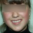 Имплантация и протезирование зубов (Евгения, 18 лет)