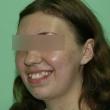Исправление прикуса (Елена, 22 года) -Стоматология «ВИД»