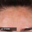 Пигментация. Лечение. (Ирина, 38 лет)-Косметология ВИД