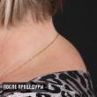Липолитик Fat apoptosis (Наталья, 52 года)-Косметология ВИД