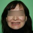 Установка Виниров (Ирина, 43 года)