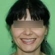 Протезирование зубов, виниры (Алена, 30 лет) -Стоматология «ВИД»