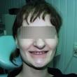 Исправление прикуса, имплантация зубов (Елена, 19 лет)