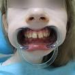 Исправление прикуса (Яна, 15 лет) -Стоматология «ВИД»