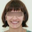 Исправление прикуса (Анжела, 35 лет)-Стоматология «ВИД»