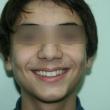 Исправление прикуса (Рамиз, 12 лет)