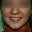 Исправление прикуса (Ольга, 28 лет) -Стоматология «ВИД»