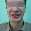 Протезирование зубов, виниры (Дмитрий, 26 лет)
