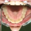 Исправление прикуса (Светлана, 38 лет) -Стоматология «ВИД»