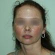 Исправление прикуса (Евгения, 38 лет) -Стоматология «ВИД»