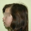 Исправление прикуса (Юлия, 12 лет)-Стоматология «ВИД»