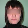 Исправление прикуса (Екатерина, 25 лет) - Стоматология «ВИД»