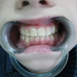Исправление прикуса (Андрей, 13 лет) -Стоматология «ВИД»