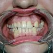 Исправление прикуса в Ростове (Лилиана, 24 года)-Стоматология «ВИД»