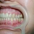 Эстетическая реставрация зубов (Лариса, 48 лет)