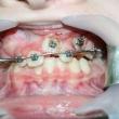 Исправление прикуса (Алексей, 12 лет)- Стоматология «ВИД»