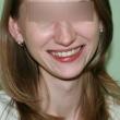 Исправление прикуса в Ростове (Александра, 27 лет) -Стоматология «ВИД»