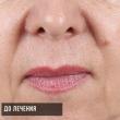 Контурная пластика Ростов (Елизавета, 55 лет)-Косметология ВИД