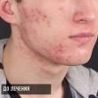Лечение акне на лице (Игорь, 18 лет)-Косметология ВИД