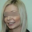 Исправление прикуса в Ростове ( Анна, 25 лет)-Стоматология «ВИД»