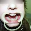 Исправление прикуса (Влада, 14 лет)-Стоматология «ВИД»