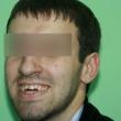Исправление прикуса (Константин, 27 лет) -Стоматология «ВИД»