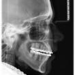 Исправление прикуса (Елена, 17 лет)-Стоматология «ВИД»