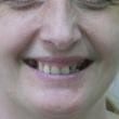 Протезирование зубов, бюгельный протез (Галина, 50 лет)