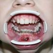 Исправление прикуса (Максим, 11 лет)-Стоматология «ВИД»