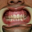 Исправление прикуса (Андрей, 27 лет) -Стоматология «ВИД»