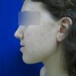 Исправление прикуса (Лиза, 20 лет) -Стоматология «ВИД»