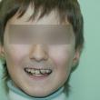 Исправление прикуса (Константин, 12 лет) -Стоматология «ВИД»