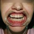 Установка виниров (Наталья, 35 лет) -Стоматология «ВИД»