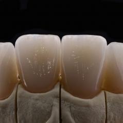 Коронки на зубы.