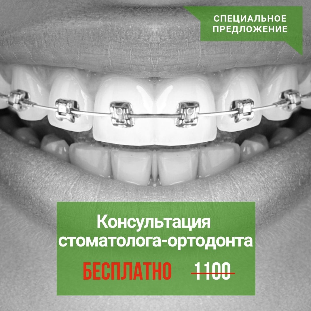 <b>Консультация ортодонта</b>