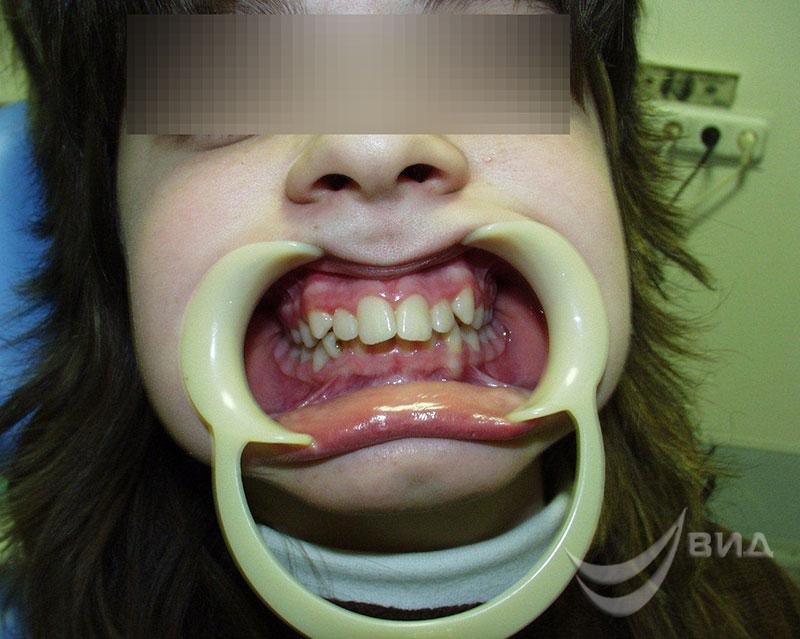 виниры на нижние зубы фото