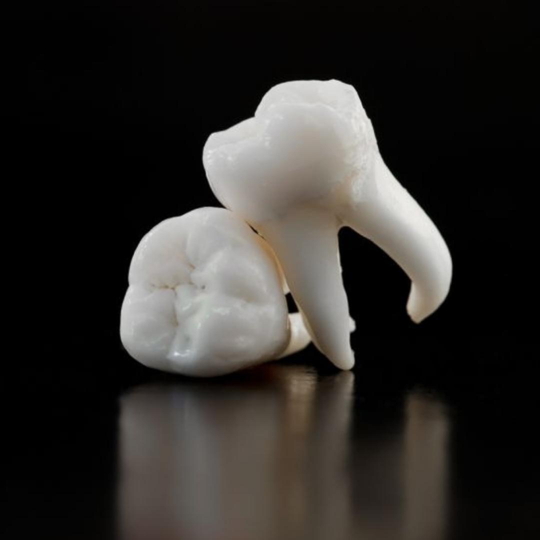 Воспаление пульпы зуба - симптомы болезни, профилактика и лечение Воспаления пульпы зуба, причины заболевания и его диагностика на EUROLAB