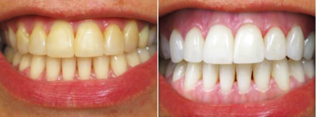 Результат отбеливания зубов по системе Beyond