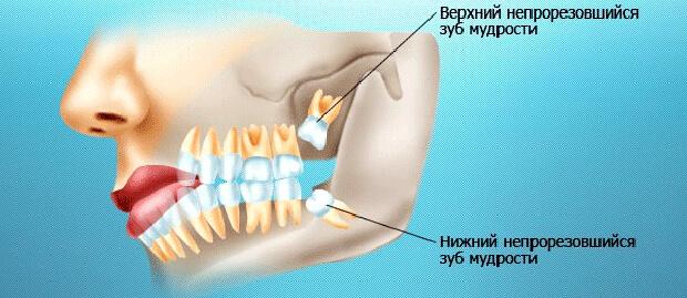 Расположение зубов мудрости на верхней и нижней челюсти
