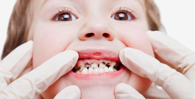 Кариес молочных зубов, лечение в Ростове-на-Дону