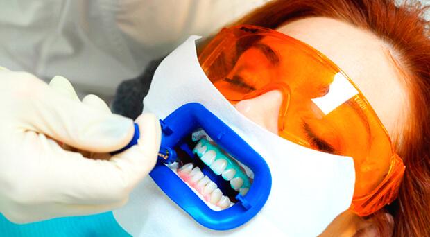 Проведение процедуры отбеливания зубов Beyond